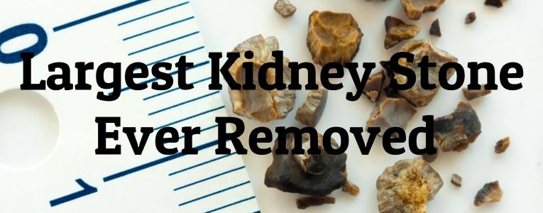 largest-kidney-stones