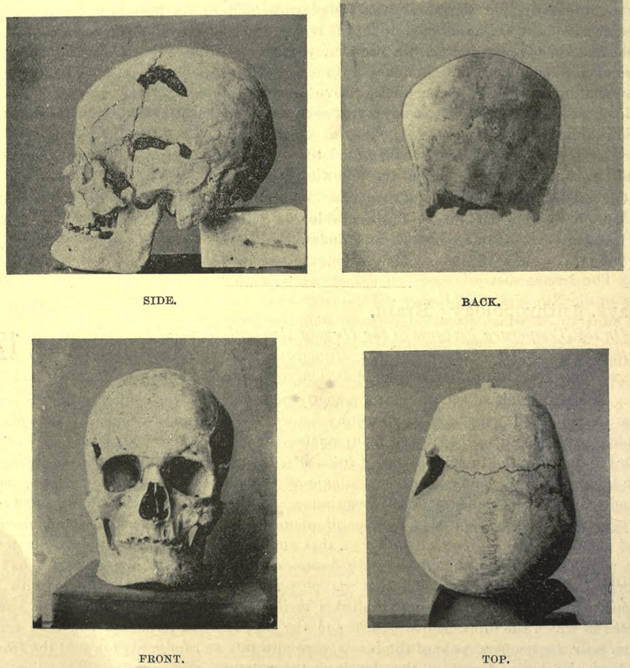 Pharaoh Sanakht's Skeleton